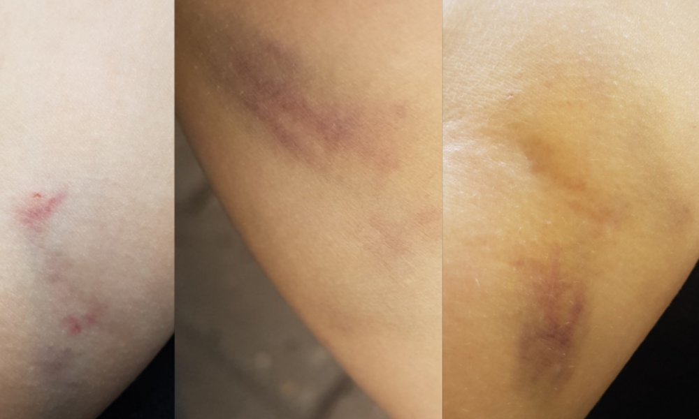 Blutabnahme blauer fleck